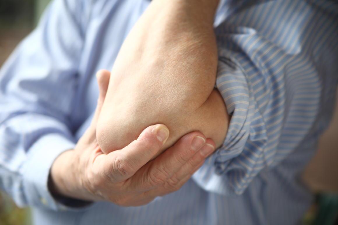 Man with arthritis in eblow